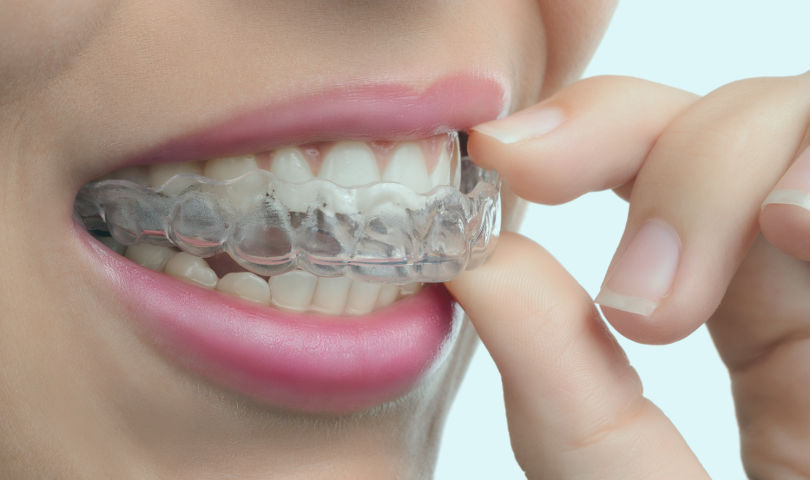 Woman putting on clear correct braces